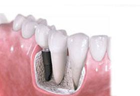 Dental Implants Surrey