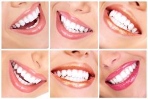 multi-smile-1024x683