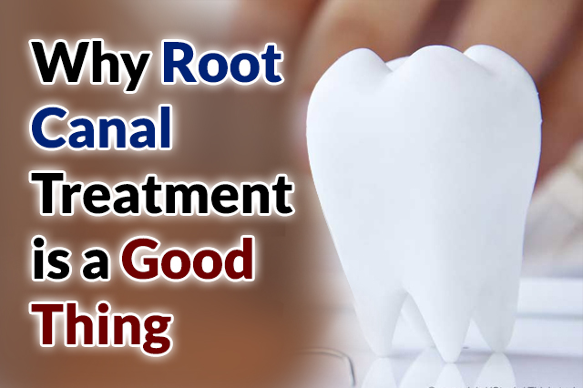 Why-Root-Canal-Treatment-is-a-Good-Thing