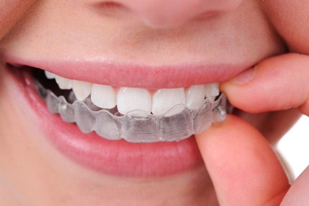 dental-clinic-in-surrey