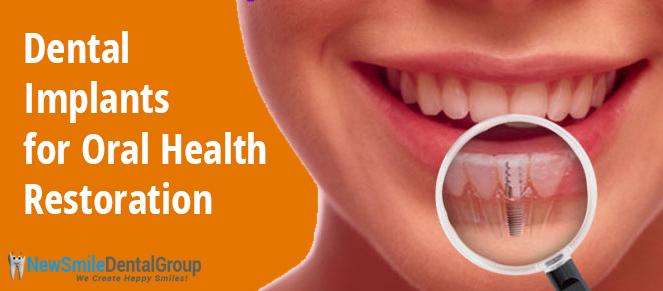 Dental Implants for Oral Health Restoration