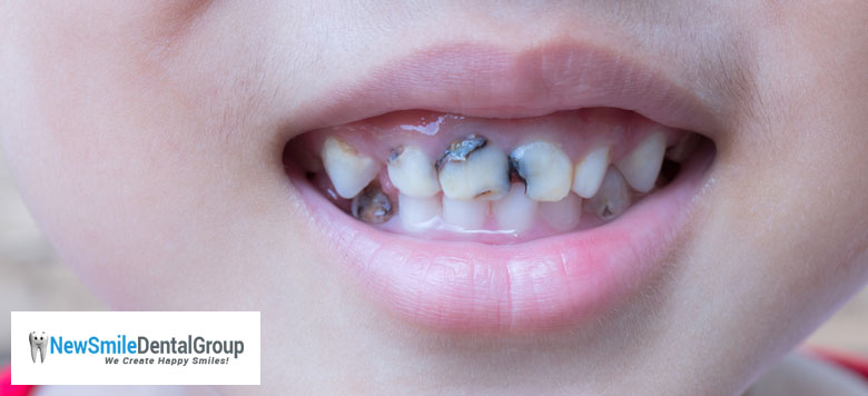 Simple-Steps-to-Prevent-Risk-of-Tooth-Decay