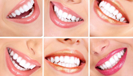 Should Know About Teeth Whitening