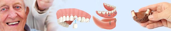 Dentures-innerbanner